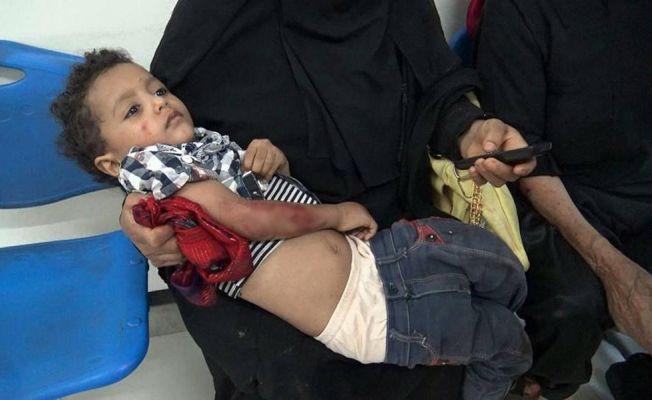 Yemen'de çatışma: 6 ölü, 20 yaralı